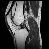 Дослідження суглобів і кінцівок