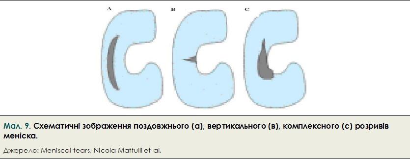 34-mal_9